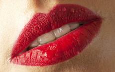 Hyaluron Lippenaufspitzung Lippenvergrößerung  Medical Esthetics Aachen